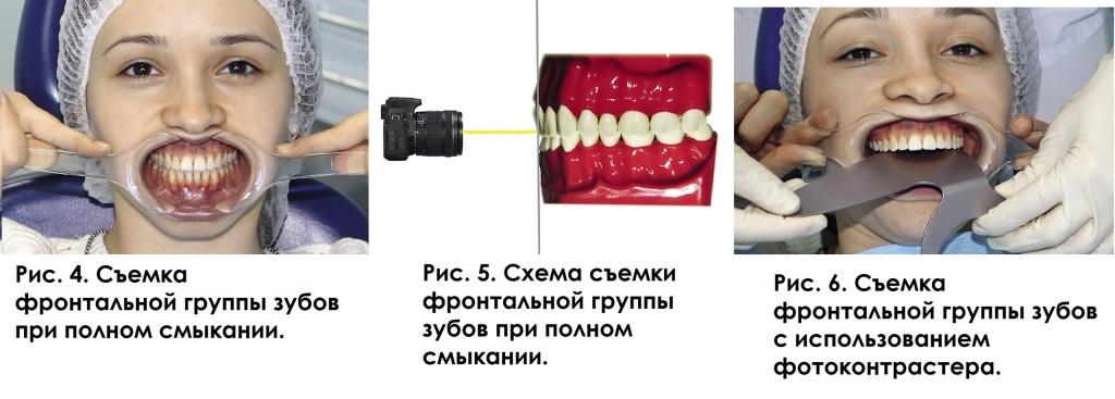 зеркало для внутриротовых снимков купить