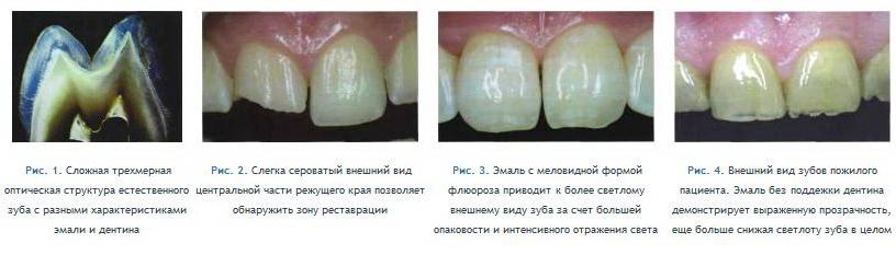 Стал прозрачным зуб причины