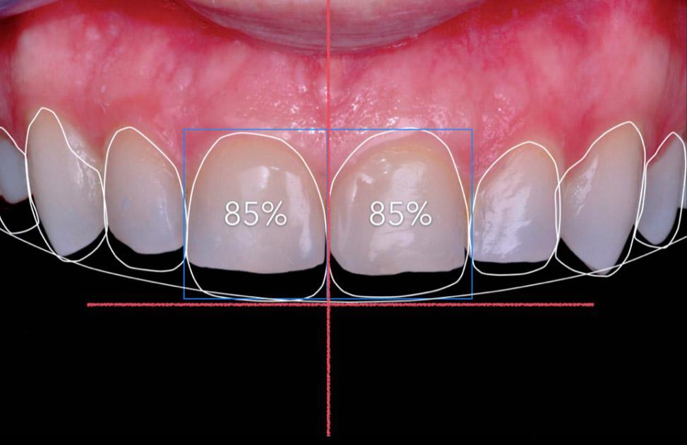 Удлинение зубов как