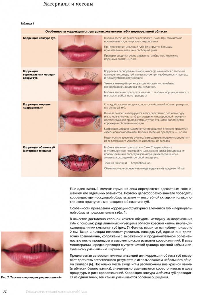 Коррекция формы губ отзывы