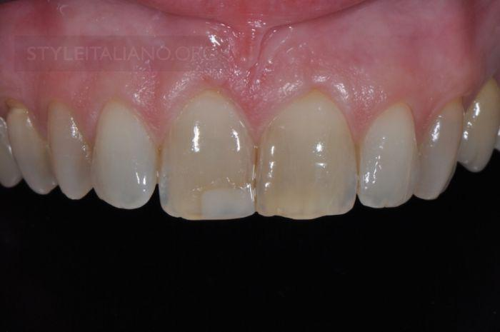 фото протокол в стоматологии