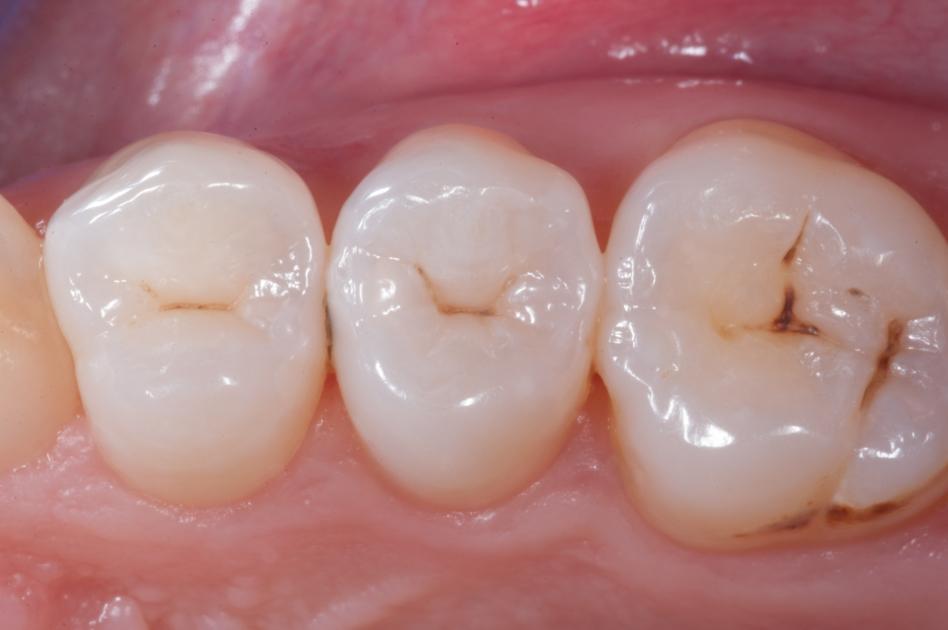 399Снимок депульпированного зуба