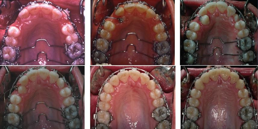 Удаление ретинированного зуба мудрости на верхней челюсти