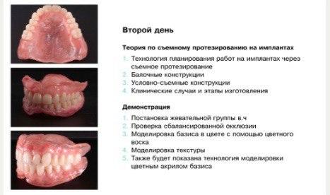 Курсы по съемному протезированию для зубных техников