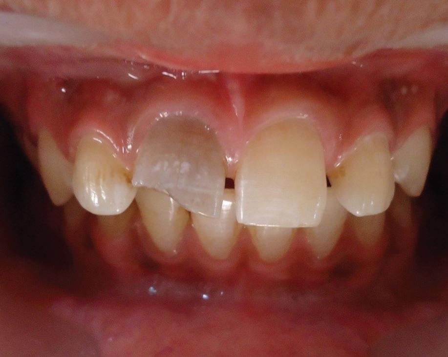 Полость рта человека является рассадником патологической микрофлоры, которая при благоприятных условиях может начать активно развиваться, вызывая инфицирование области.