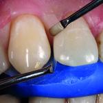 Биомиметическая реставрация зуба