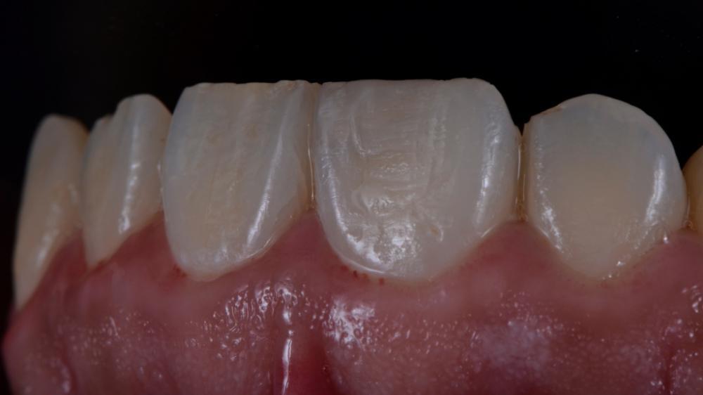 Откололся зуб коронка