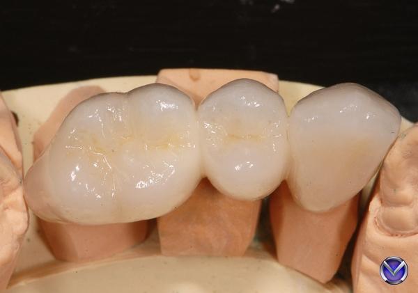 Фантомный зуб что это