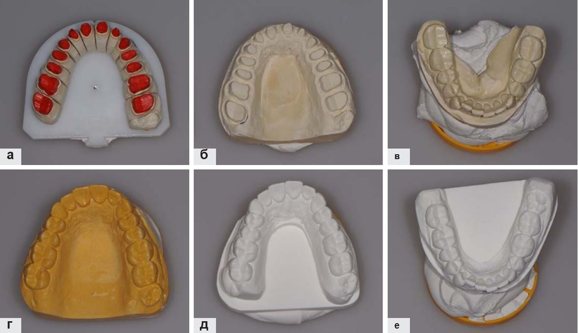 Системы работы с зубными моделями куда сходить после работы с девушкой